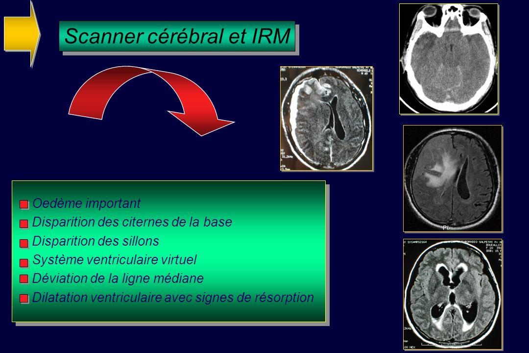 Scanner cérébral et IRM Oedème important Disparition des citernes de la base Disparition des sillons Système ventriculaire virtuel Déviation de la ligne médiane Dilatation ventriculaire avec signes de résorption
