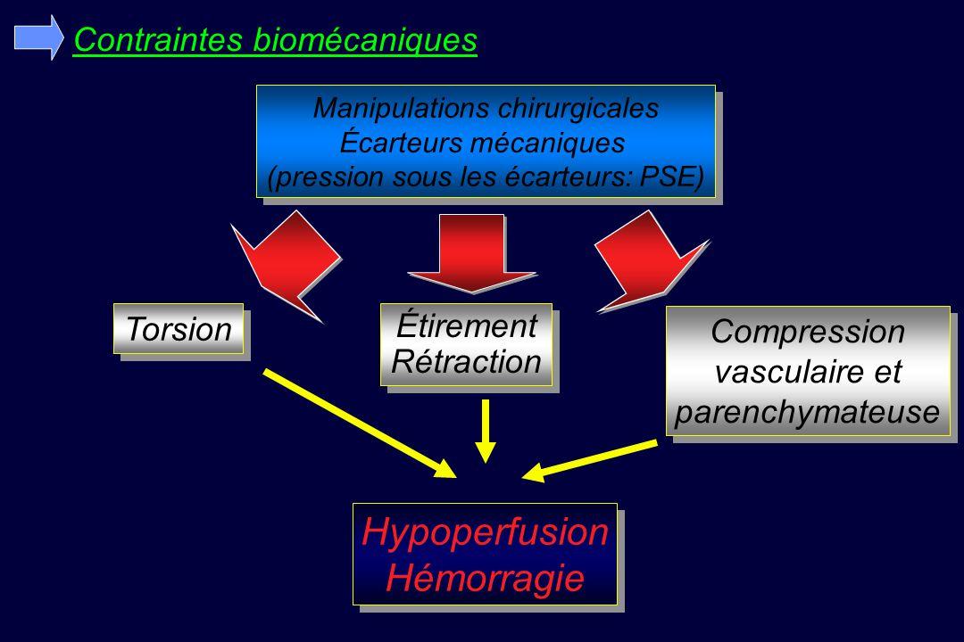 Contraintes biomécaniques Manipulations chirurgicales Écarteurs mécaniques (pression sous les écarteurs: PSE) Manipulations chirurgicales Écarteurs mécaniques (pression sous les écarteurs: PSE) Torsion Étirement Rétraction Étirement Rétraction Compression vasculaire et parenchymateuse Compression vasculaire et parenchymateuse Hypoperfusion Hémorragie Hypoperfusion Hémorragie