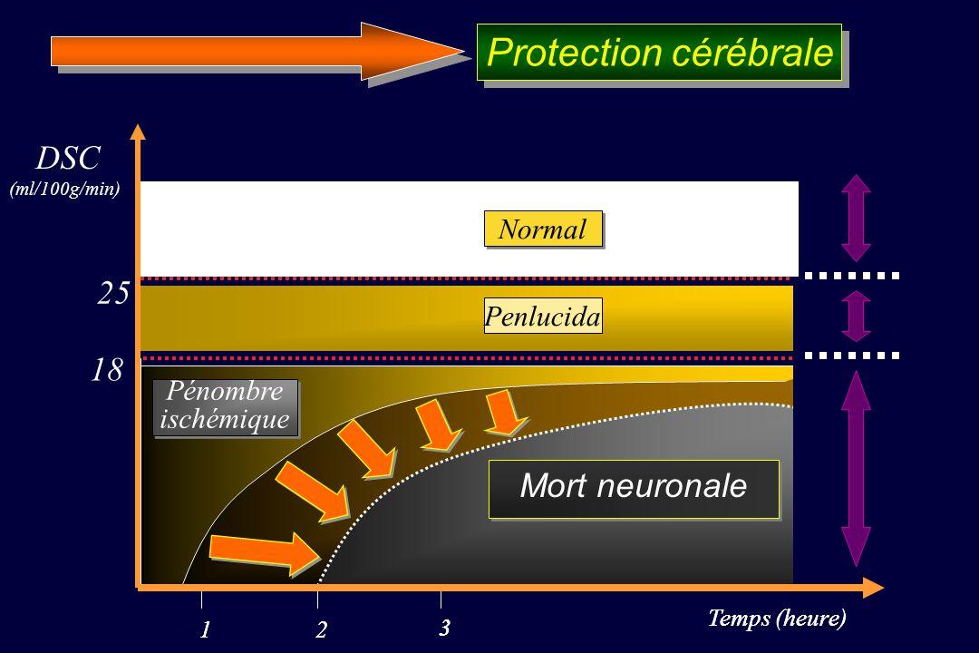 Temps (heure) DSC (ml/100g/min) 12 3 Temps (heure) 12 3 Mort neuronale 18 Mort neuronale Penlucida 25 Normal Pénombre ischémique Pénombre ischémique M