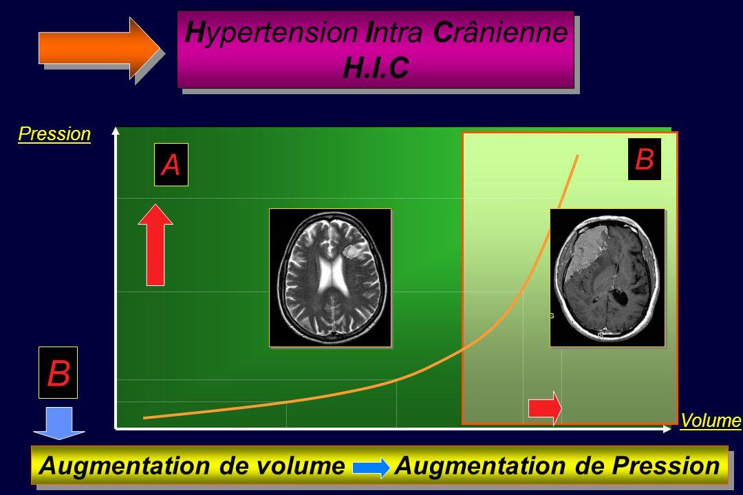 Courbe Pression / Volume A Compliance élevée B Compliance effondrée Si compliance cérébrale effondrée laddition dun petit néo-volume entraîne une élév