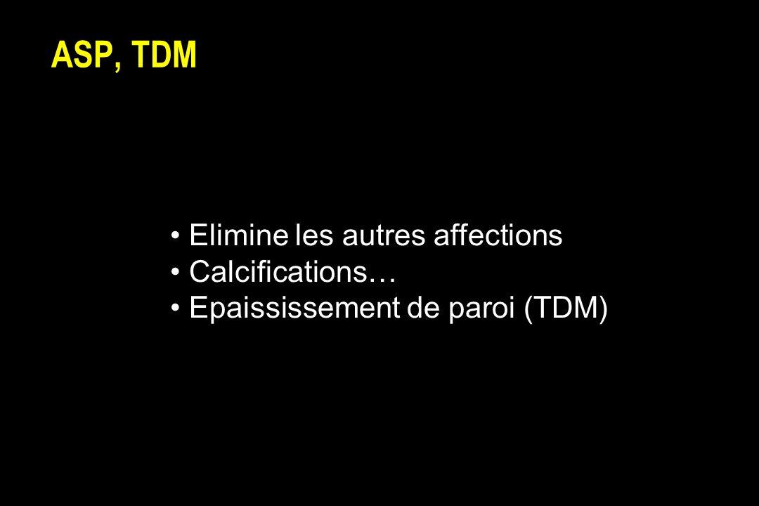 ASP, TDM Elimine les autres affections Calcifications… Epaississement de paroi (TDM)