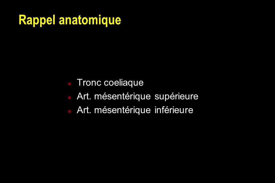 Ischémie mésentérique occlusive Embolies artérielles (55%) Troubles du rythme, ectasie OG, etc.