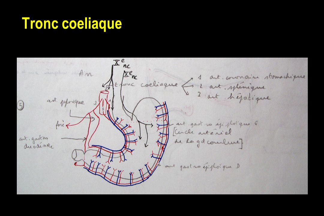 Tronc coeliaque