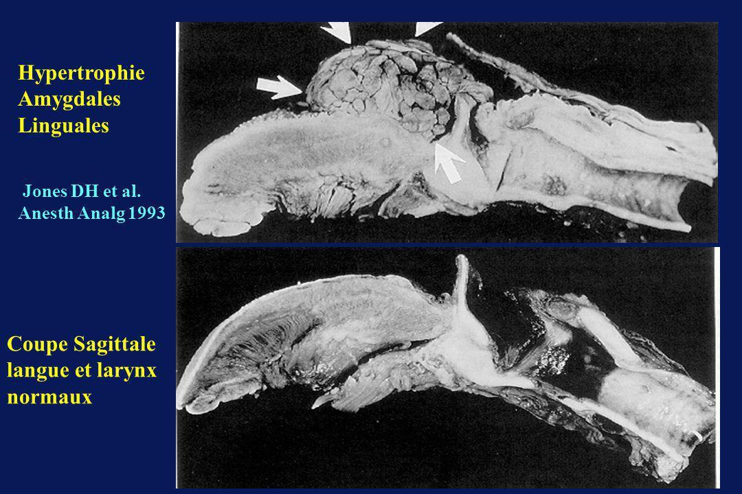 Hypertrophie Amygdales Linguales Coupe Sagittale langue et larynx normaux Jones DH et al.
