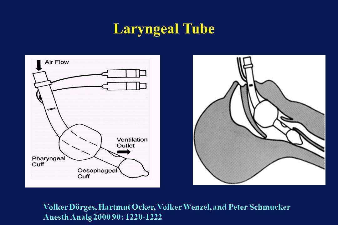 Laryngeal Tube Volker Dörges, Hartmut Ocker, Volker Wenzel, and Peter Schmucker Anesth Analg 2000 90: 1220-1222