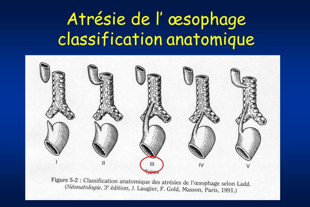Atrésie de l œsophage classification anatomique
