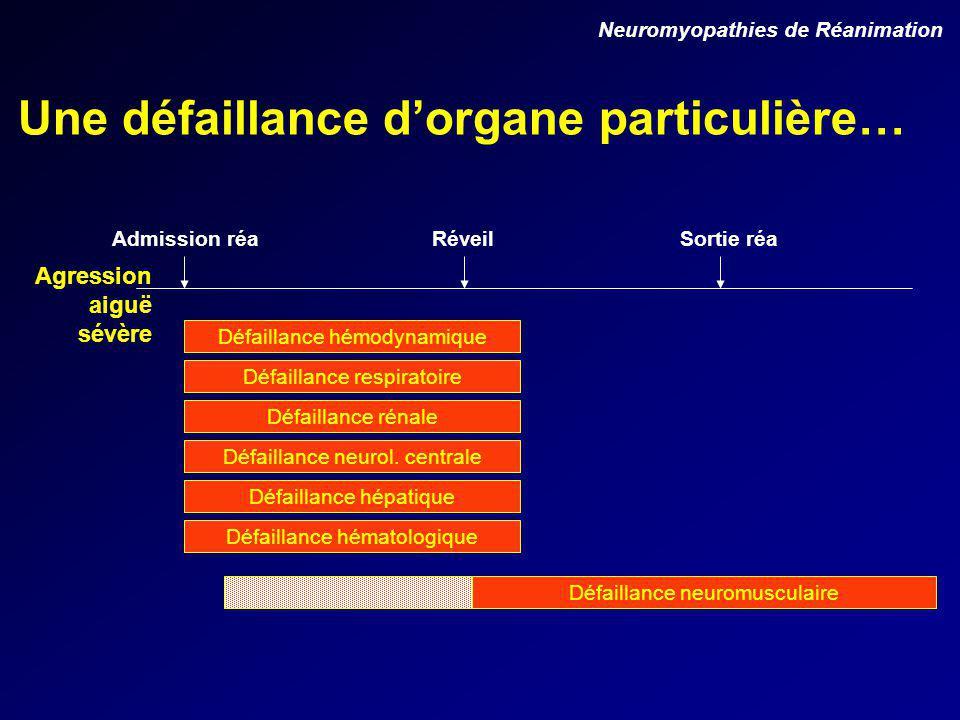Une défaillance dorgane particulière… Neuromyopathies de Réanimation Défaillance hémodynamique Défaillance respiratoire Défaillance rénale Défaillance neurol.