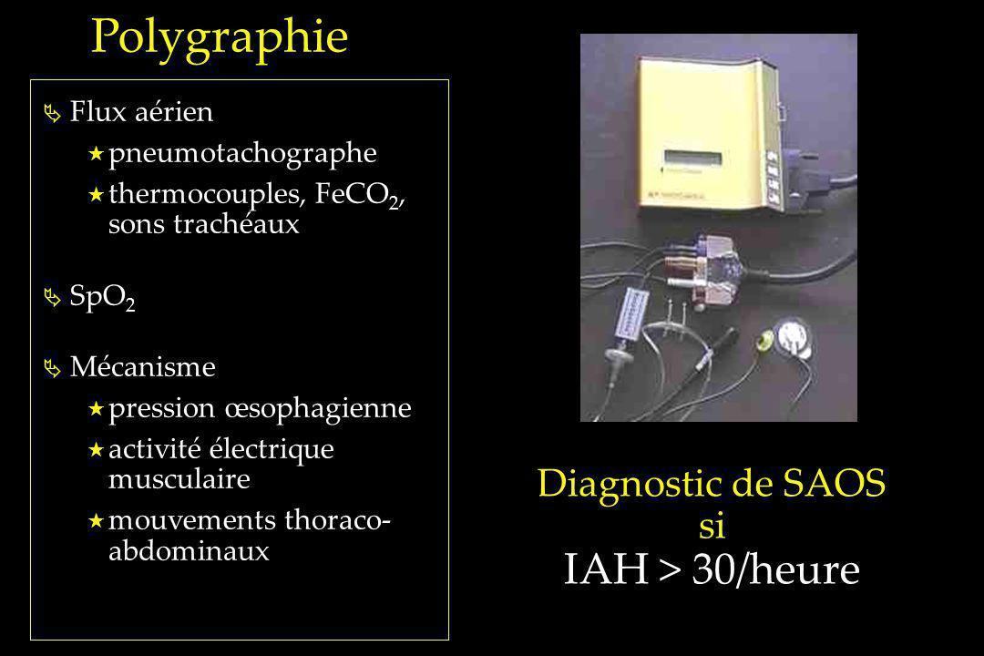Flux aérien pneumotachographe thermocouples, FeCO 2, sons trachéaux SpO 2 Mécanisme pression œsophagienne activité électrique musculaire mouvements th