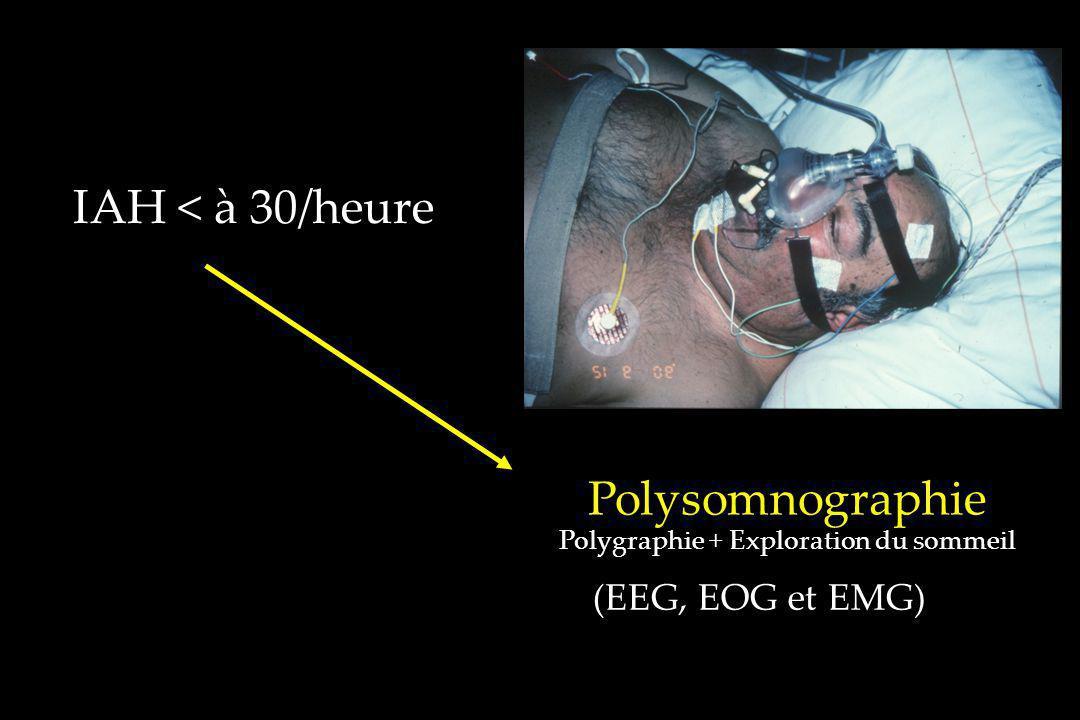 (EEG, EOG et EMG) Polysomnographie Polygraphie + Exploration du sommeil IAH < à 30/heure