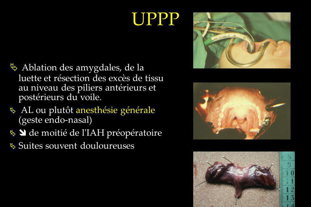 UPPP Ablation des amygdales, de la luette et résection des excès de tissu au niveau des piliers antérieurs et postérieurs du voile. AL ou plutôt anest