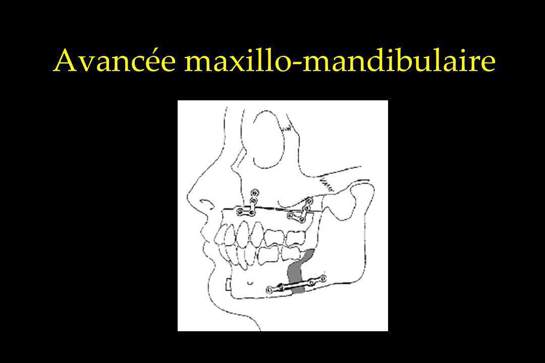 Avancée maxillo-mandibulaire