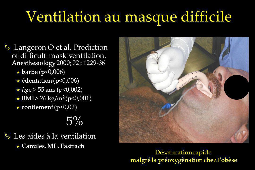 Ventilation au masque difficile Langeron O et al. Prediction of difficult mask ventilation. Anesthesiology 2000; 92 : 1229-36 barbe (p<0,006) édentati