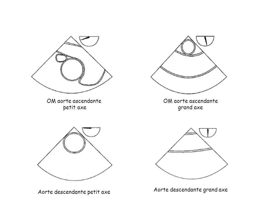 OM aorte ascendante petit axe OM aorte ascendante grand axe Aorte descendante petit axe Aorte descendante grand axe