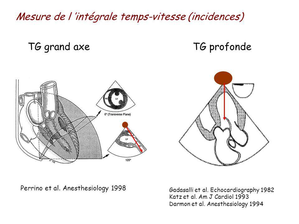 Mesure de l intégrale temps-vitesse (incidences) TG grand axe Perrino et al.