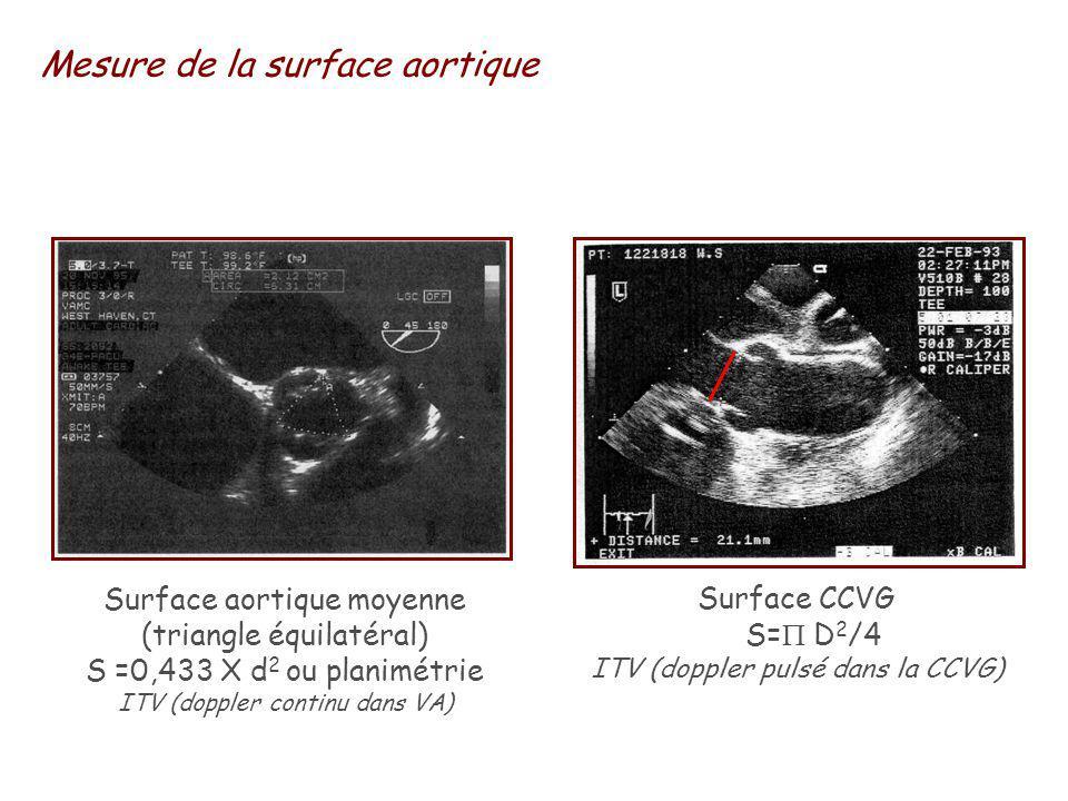 Mesure de la surface aortique Surface aortique moyenne (triangle équilatéral) S =0,433 X d 2 ou planimétrie ITV (doppler continu dans VA) Surface CCVG S= D 2 /4 ITV (doppler pulsé dans la CCVG)