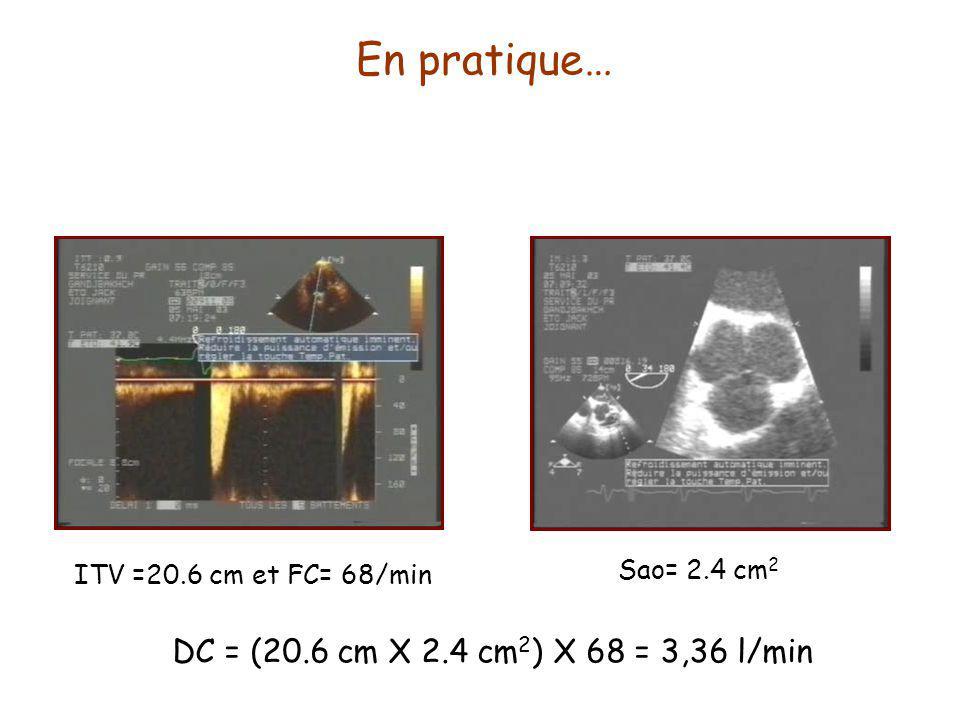 En pratique… ITV =20.6 cm et FC= 68/min Sao= 2.4 cm 2 DC = (20.6 cm X 2.4 cm 2 ) X 68 = 3,36 l/min