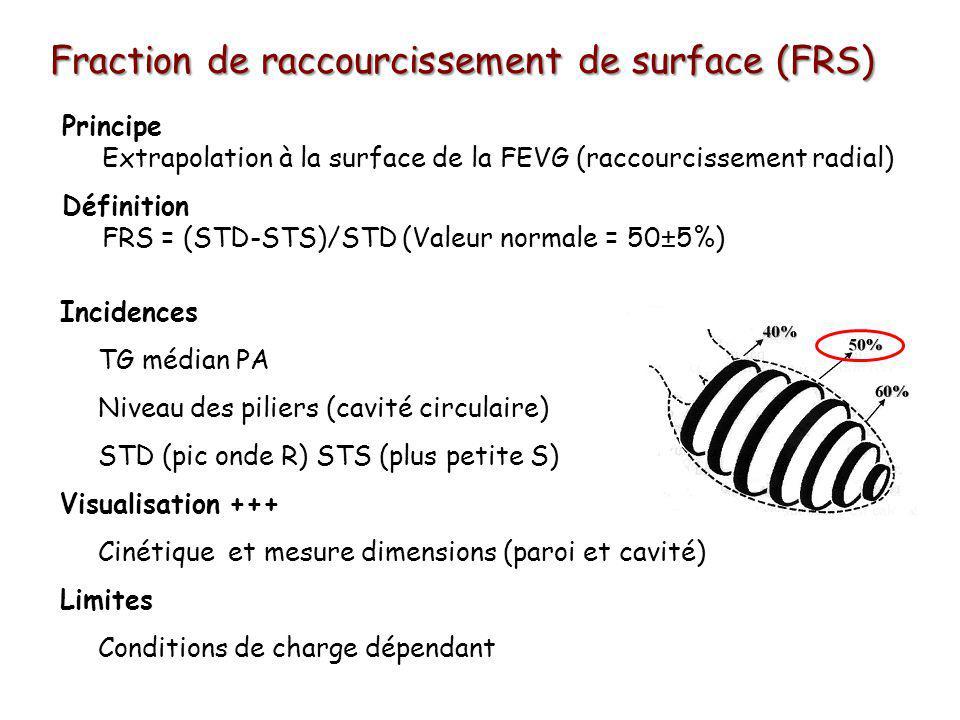 Fraction de raccourcissement de surface (FRS) Incidences TG médian PA Niveau des piliers (cavité circulaire) STD (pic onde R) STS (plus petite S) Visualisation +++ Cinétique et mesure dimensions (paroi et cavité) Limites Conditions de charge dépendant Principe Extrapolation à la surface de la FEVG (raccourcissement radial) Définition FRS = (STD-STS)/STD (Valeur normale = 50±5%)