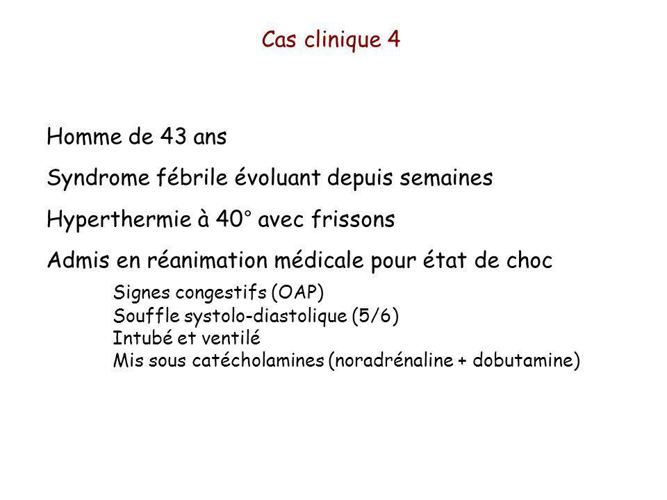 Homme de 43 ans Syndrome fébrile évoluant depuis semaines Hyperthermie à 40° avec frissons Admis en réanimation médicale pour état de choc Signes congestifs (OAP) Souffle systolo-diastolique (5/6) Intubé et ventilé Mis sous catécholamines (noradrénaline + dobutamine) Cas clinique 4