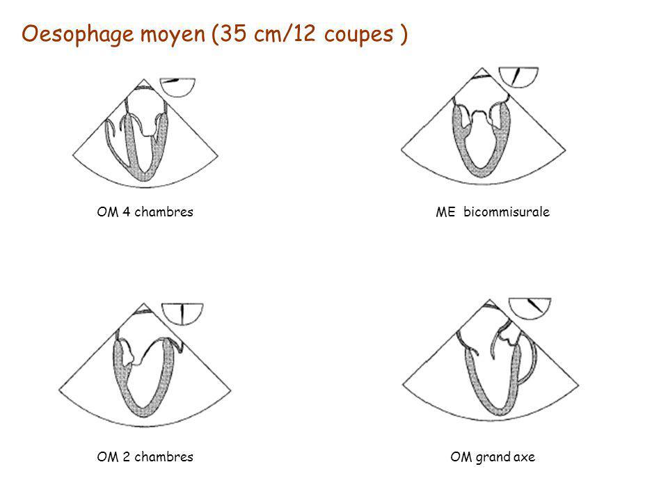 Oesophage moyen (35 cm/12 coupes ) OM 4 chambresME bicommisurale OM 2 chambresOM grand axe