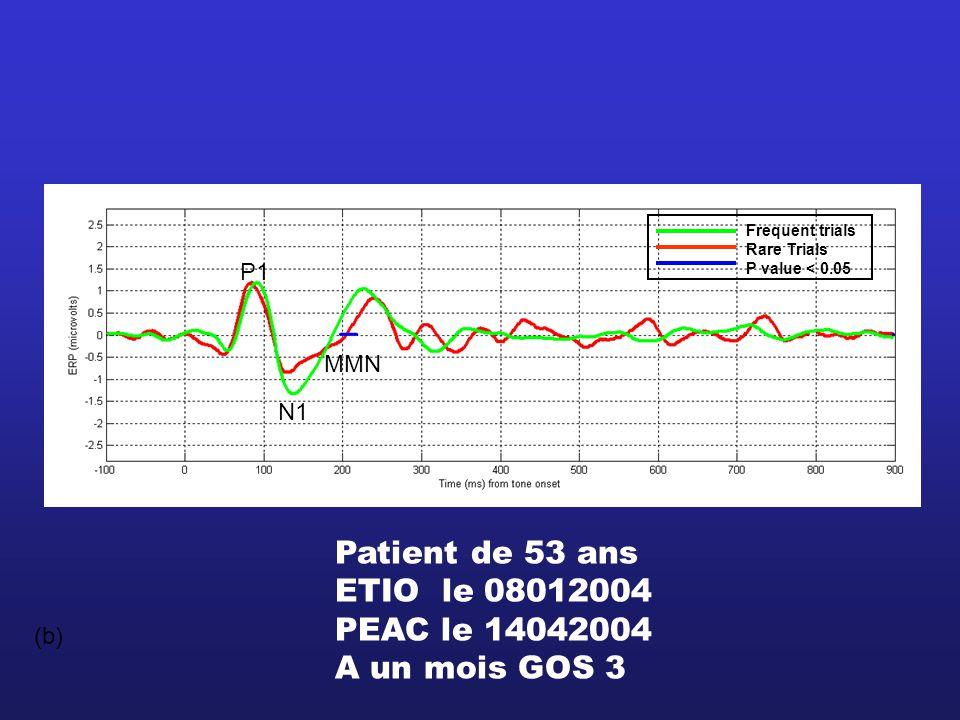 (b) Frequent trials Rare Trials P value < 0.05 P1 N1 MMN Patient de 53 ans ETIO le 08012004 PEAC le 14042004 A un mois GOS 3