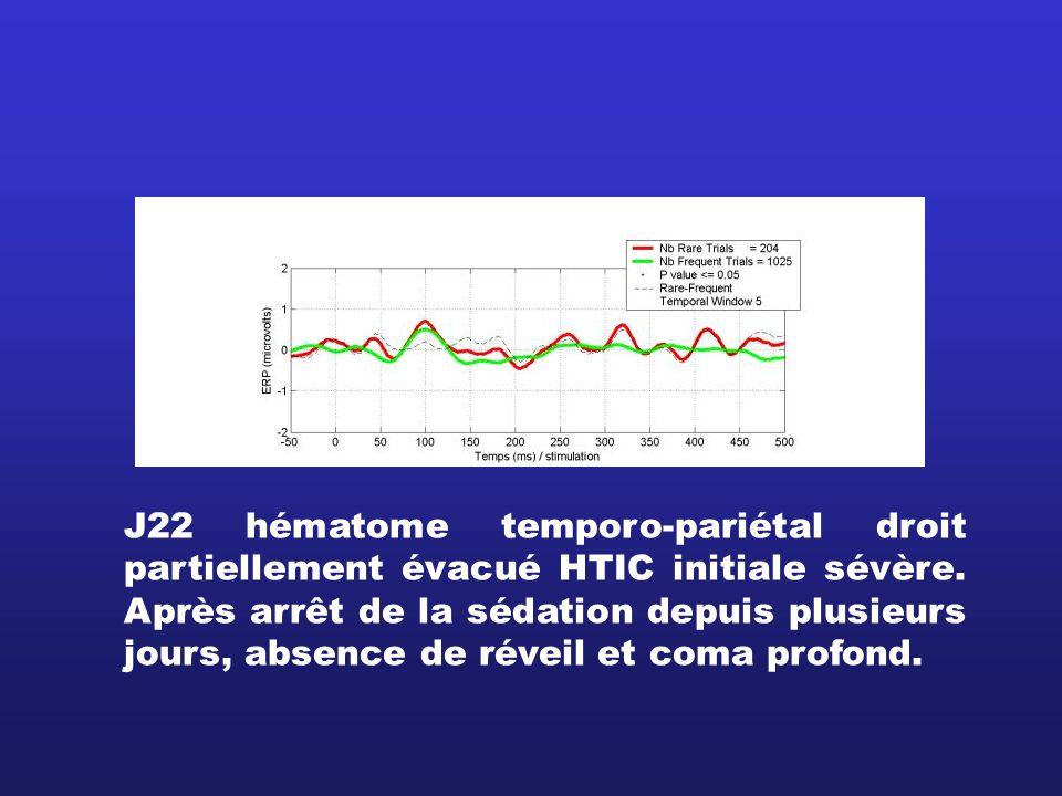J22 hématome temporo-pariétal droit partiellement évacué HTIC initiale sévère. Après arrêt de la sédation depuis plusieurs jours, absence de réveil et