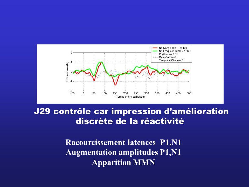J29 contrôle car impression damélioration discrète de la réactivité Racourcissement latences P1,N1 Augmentation amplitudes P1,N1 Apparition MMN