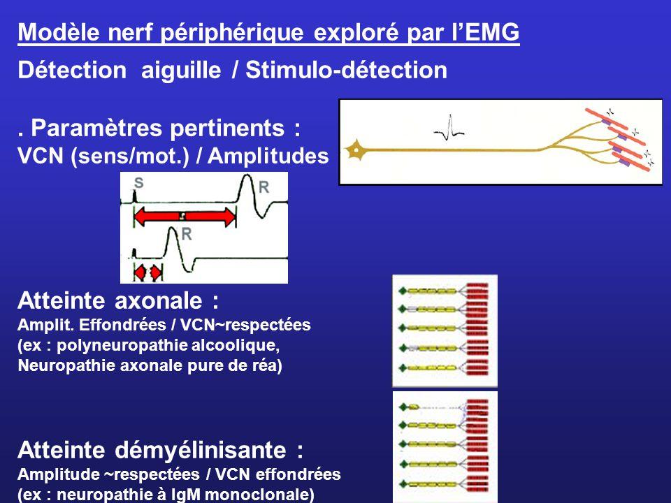 Modèle nerf périphérique exploré par lEMG Détection aiguille / Stimulo-détection. Paramètres pertinents : VCN (sens/mot.) / Amplitudes Atteinte axonal
