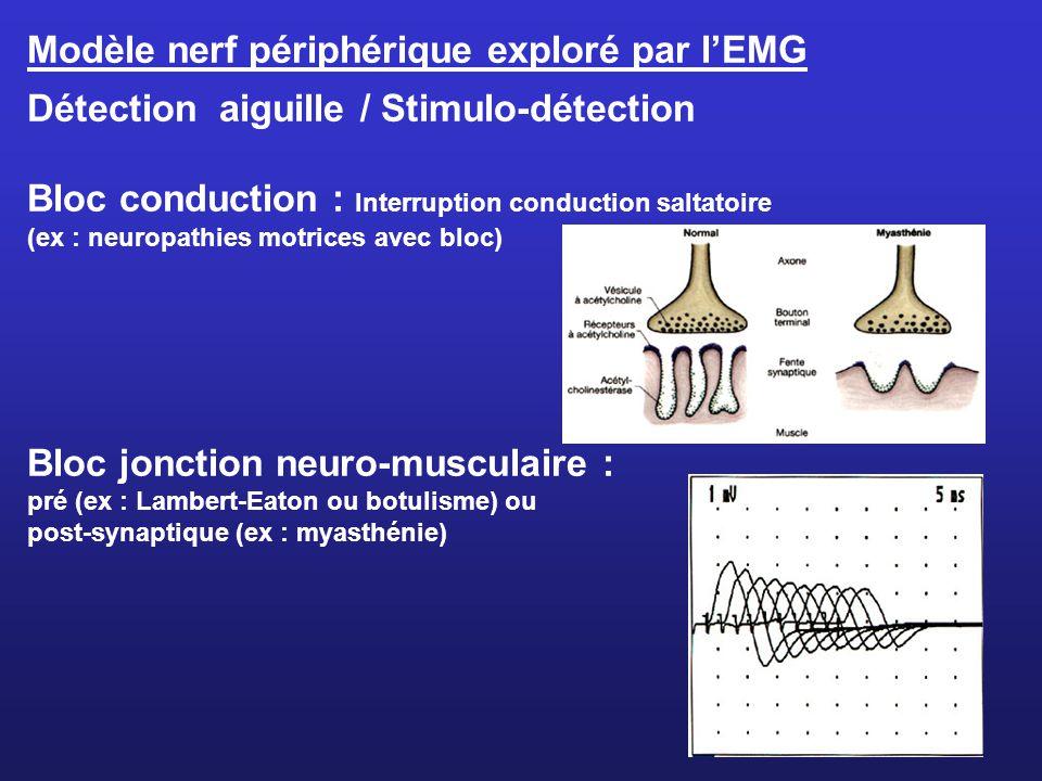 Modèle nerf périphérique exploré par lEMG Détection aiguille / Stimulo-détection Bloc conduction : Interruption conduction saltatoire (ex : neuropathi