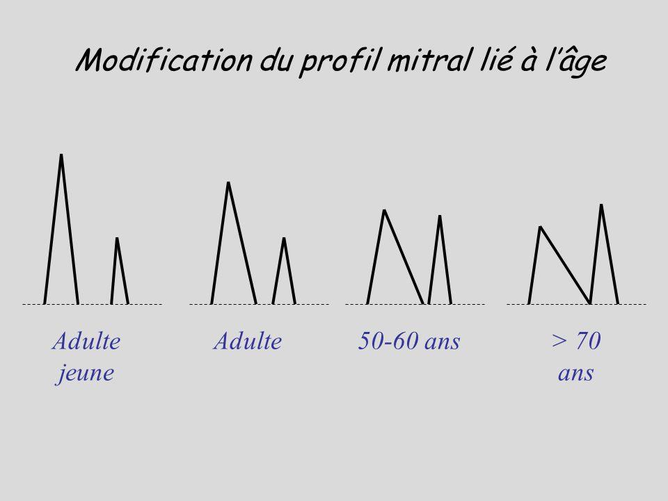 Adulte jeune Adulte50-60 ans> 70 ans Modification du profil mitral lié à lâge