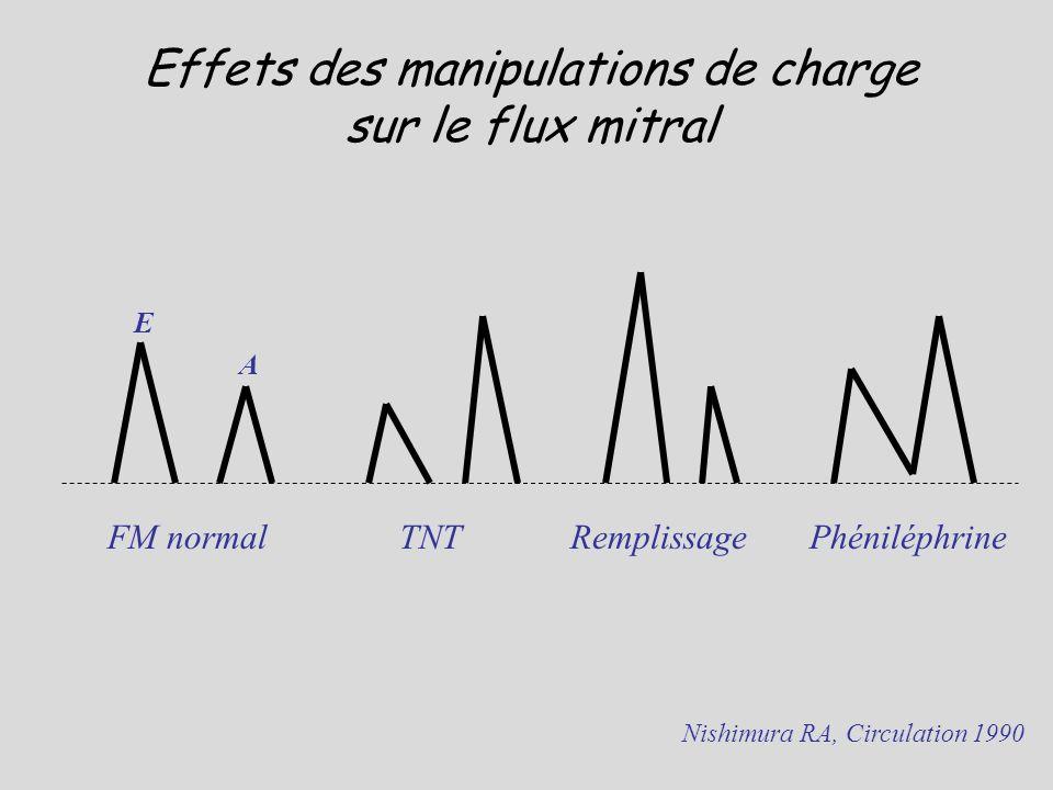 Effets des manipulations de charge sur le flux mitral Nishimura RA, Circulation 1990 TNT Remplissage Phéniléphrine FM normal E A