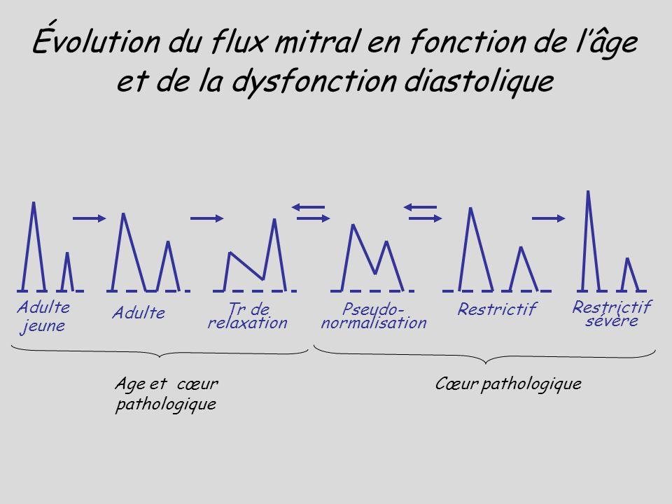 Adulte jeune Évolution du flux mitral en fonction de lâge et de la dysfonction diastolique Adulte Tr de relaxation Restrictif sévère RestrictifPseudo-