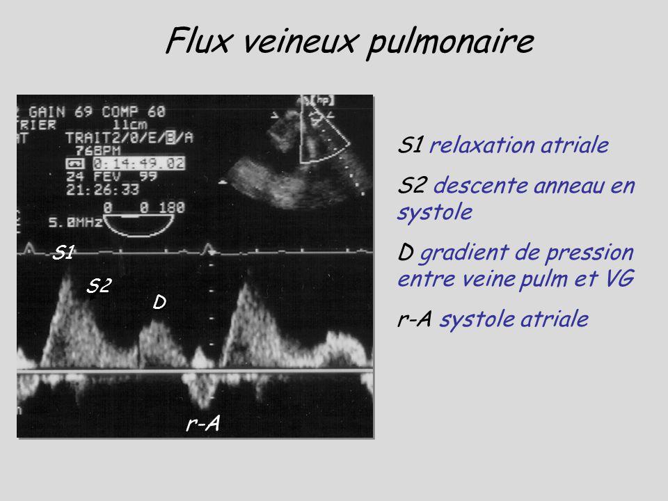 S1 S2 D r-A Flux veineux pulmonaire S1 relaxation atriale S2 descente anneau en systole D gradient de pression entre veine pulm et VG r-A systole atri