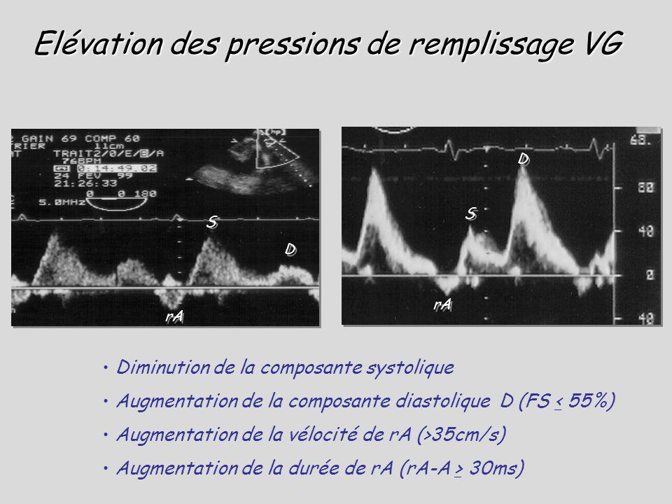 Elévation des pressions de remplissage VG Diminution de la composante systolique Augmentation de la composante diastolique D (FS < 55%) Augmentation d