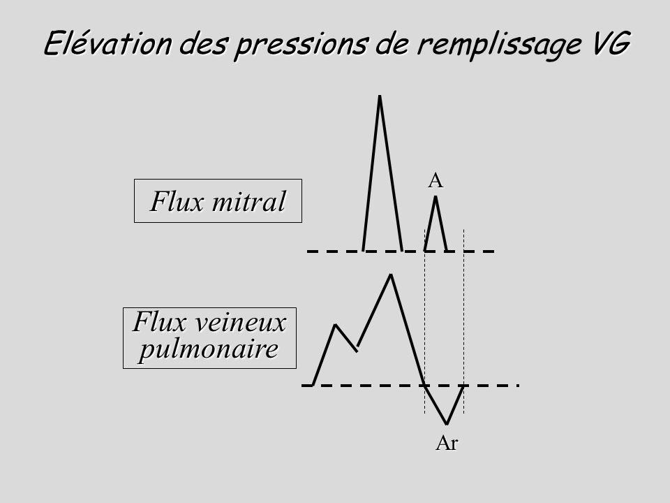 A Ar Flux mitral Flux veineux pulmonaire Elévation des pressions de VG Elévation des pressions de remplissage VG