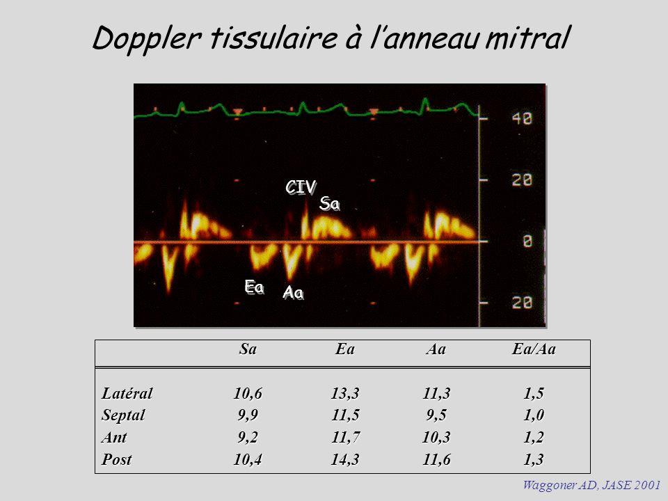 Doppler tissulaire à lanneau mitral Sa Ea Aa CIV SaEaAaEa/Aa Latéral10,613,311,31,5 Septal9,911,59,51,0 Ant9,211,710,31,2 Post10,414,311,61,3 Waggoner