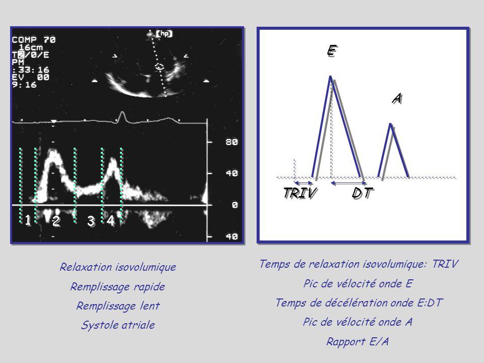 1 1 2 2 3 3 4 4 Relaxation isovolumique Remplissage rapide Remplissage lent Systole atriale E A DTTRIV Temps de relaxation isovolumique: TRIV Pic de v