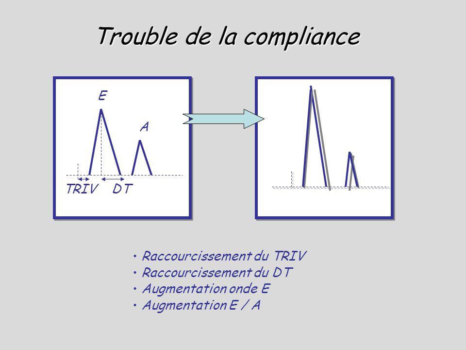 Raccourcissement du TRIV Raccourcissement du DT Augmentation onde E Augmentation E / A Trouble de la compliance E A DTTRIV