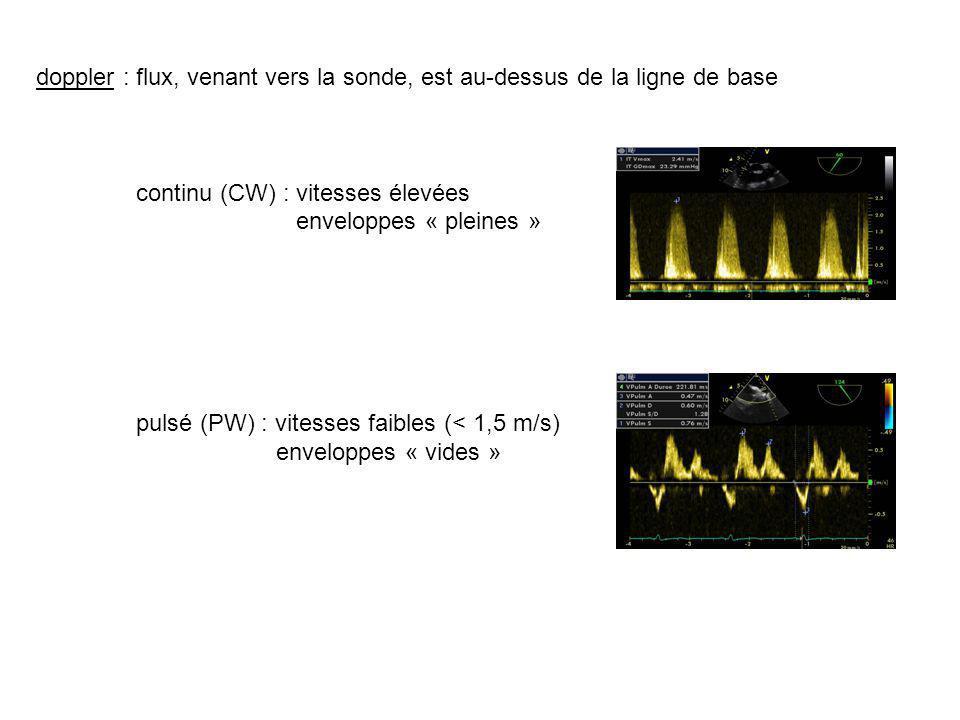 doppler : flux, venant vers la sonde, est au-dessus de la ligne de base continu (CW) : vitesses élevées enveloppes « pleines » pulsé (PW) : vitesses faibles (< 1,5 m/s) enveloppes « vides »