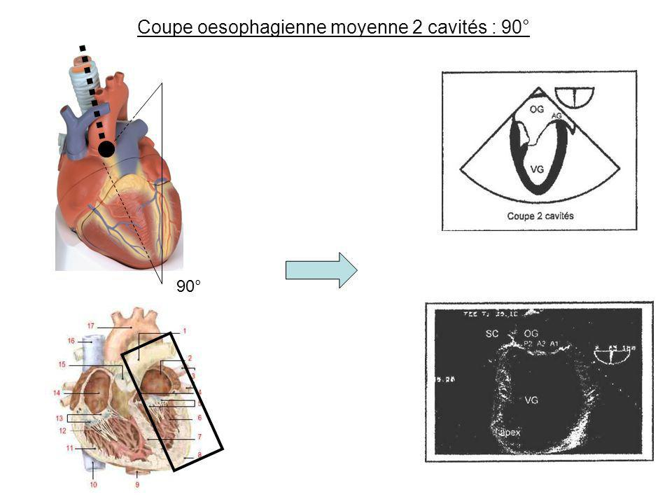 Coupe oesophagienne moyenne 2 cavités : 90° 90°