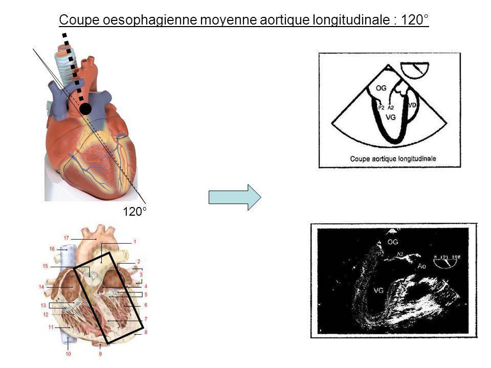 Coupe oesophagienne moyenne aortique longitudinale : 120° 120°