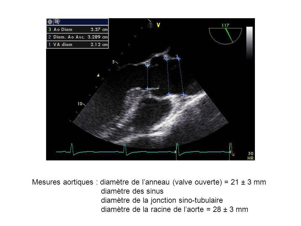 Mesures aortiques : diamètre de lanneau (valve ouverte) = 21 ± 3 mm diamètre des sinus diamètre de la jonction sino-tubulaire diamètre de la racine de