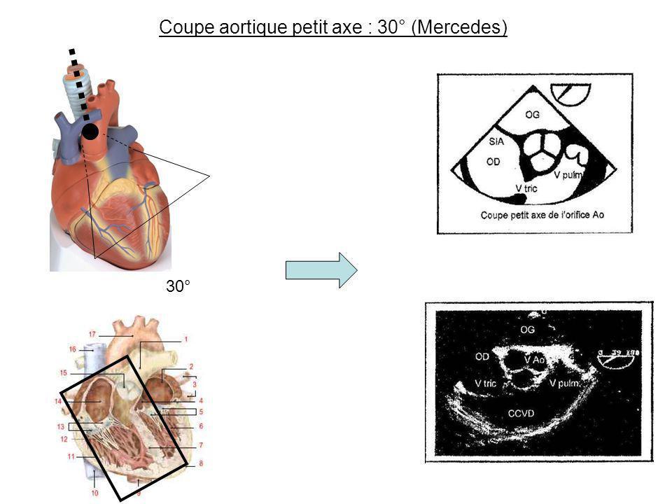 Coupe aortique petit axe : 30° (Mercedes) 30°
