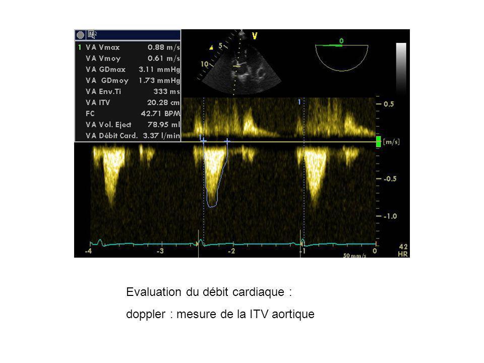 Evaluation du débit cardiaque : doppler : mesure de la ITV aortique