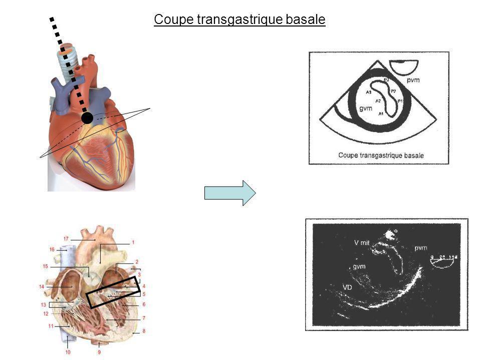 Coupe transgastrique basale