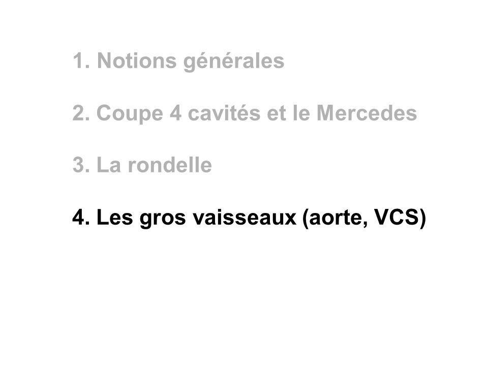 1. Notions générales 2. Coupe 4 cavités et le Mercedes 3. La rondelle 4. Les gros vaisseaux (aorte, VCS)