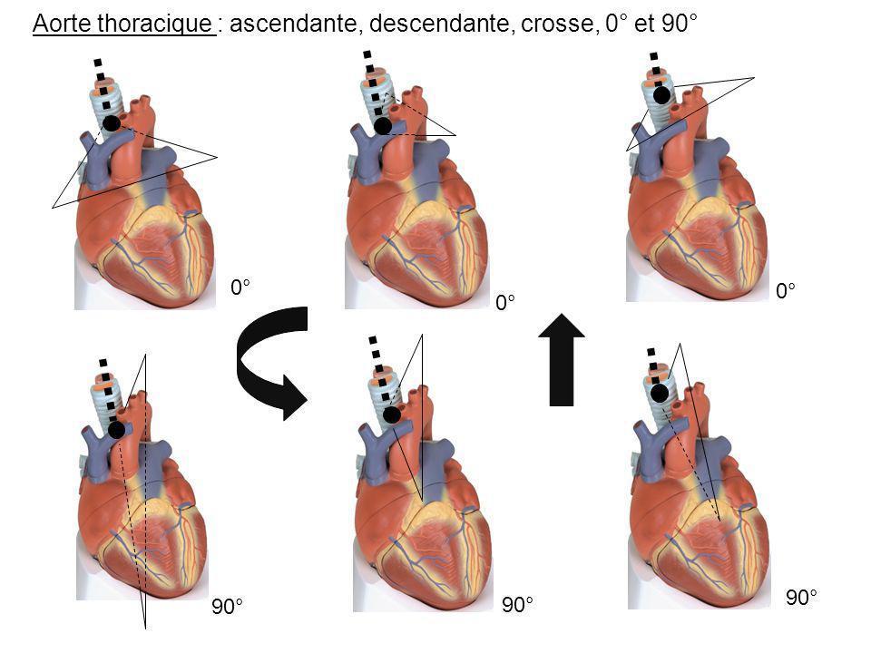 Aorte thoracique : ascendante, descendante, crosse, 0° et 90° 0° 90° 0° 90° 0° 90°
