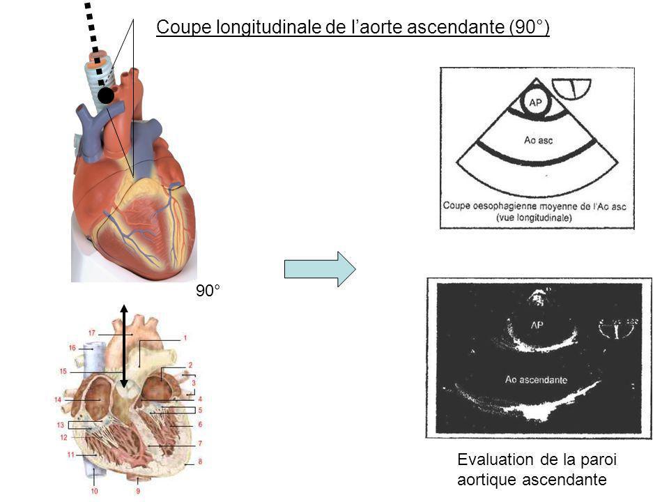 Coupe longitudinale de laorte ascendante (90°) 90° Evaluation de la paroi aortique ascendante