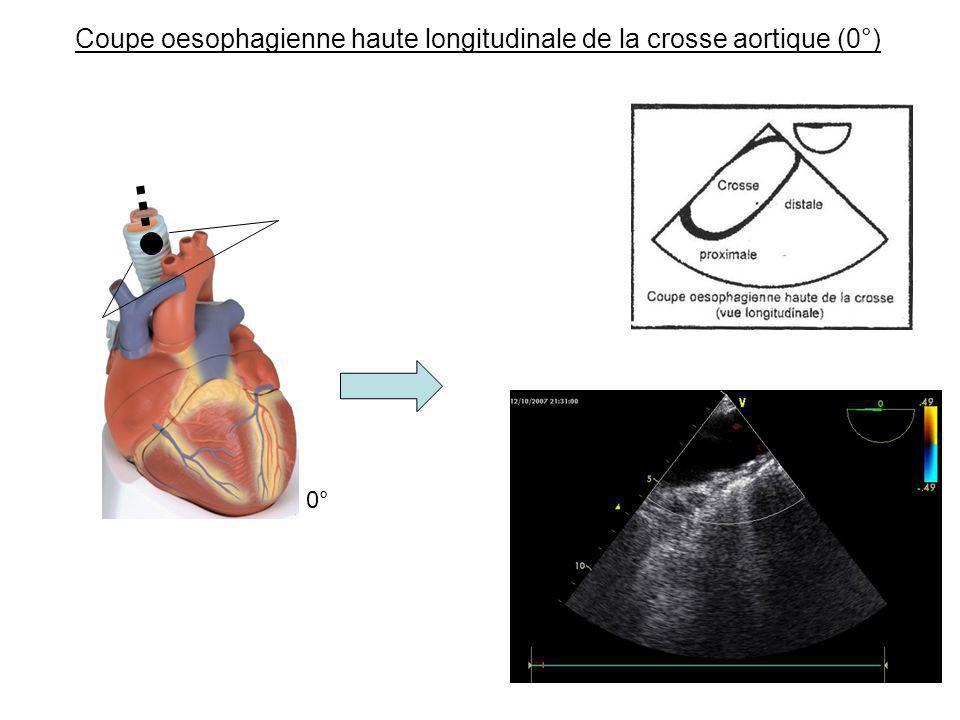 Coupe oesophagienne haute longitudinale de la crosse aortique (0°) 0°