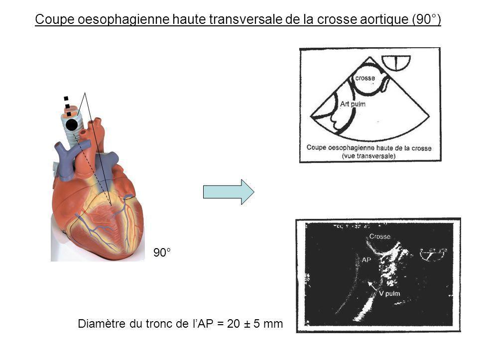 Coupe oesophagienne haute transversale de la crosse aortique (90°) 90° Diamètre du tronc de lAP = 20 ± 5 mm