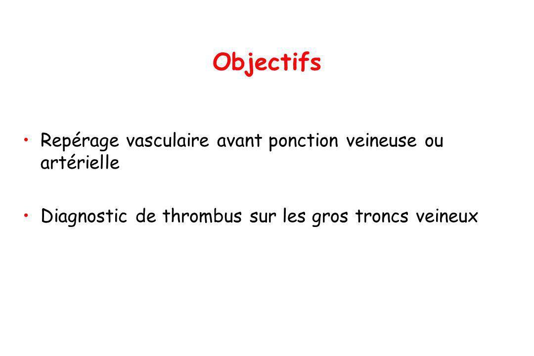 Objectifs Repérage vasculaire avant ponction veineuse ou artérielle Diagnostic de thrombus sur les gros troncs veineux